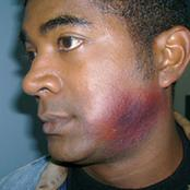 jaw-bruise.jpg