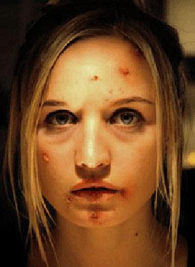 wound-9.jpg