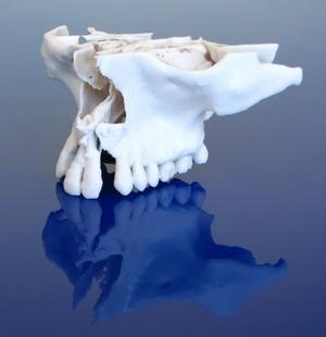 Thumbnail for Medical 3D Printing